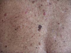 Nevi (moles) « Romanian Skin Cancer Foundation
